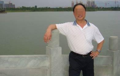 45岁男子足部进展期白癜风成功